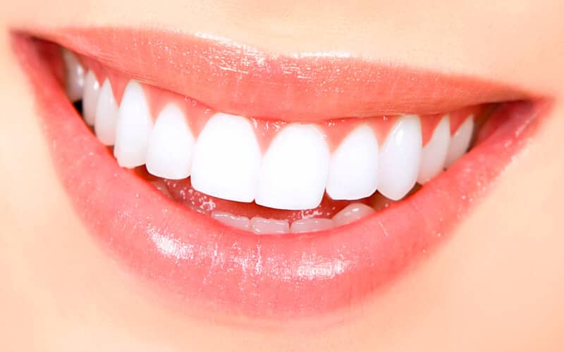 How to Have the Perfect Smile in Every Picture; Tips from Denthub